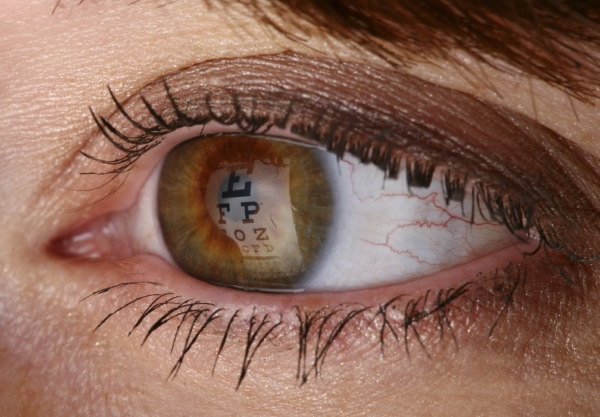 cataract removal surgery