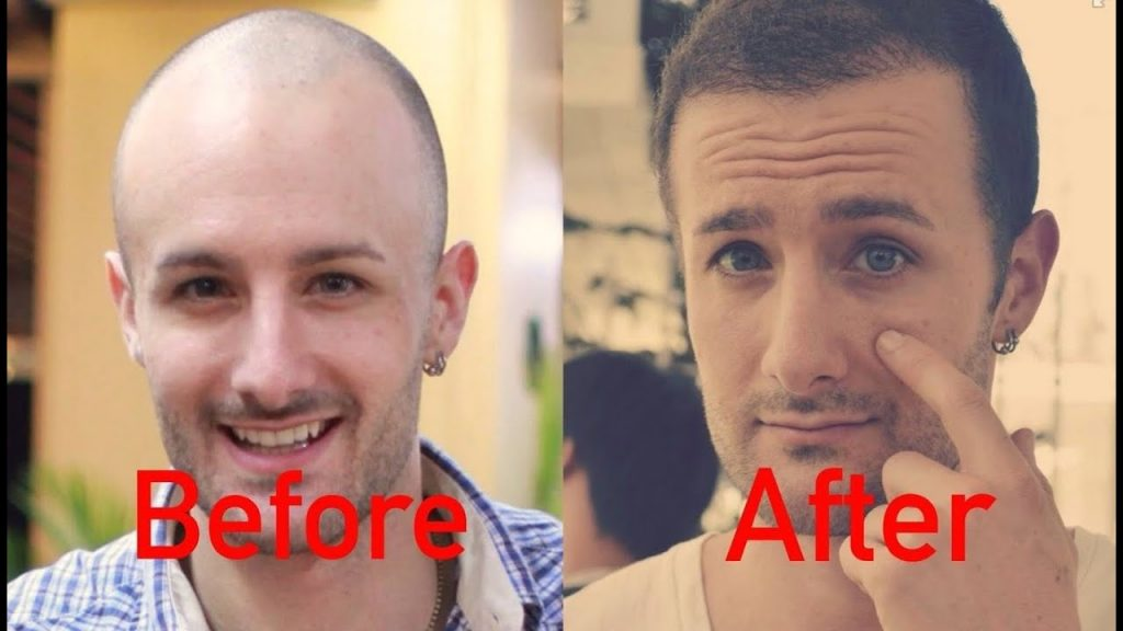 Are you in need of the hair transplant center in Ludhiana?
