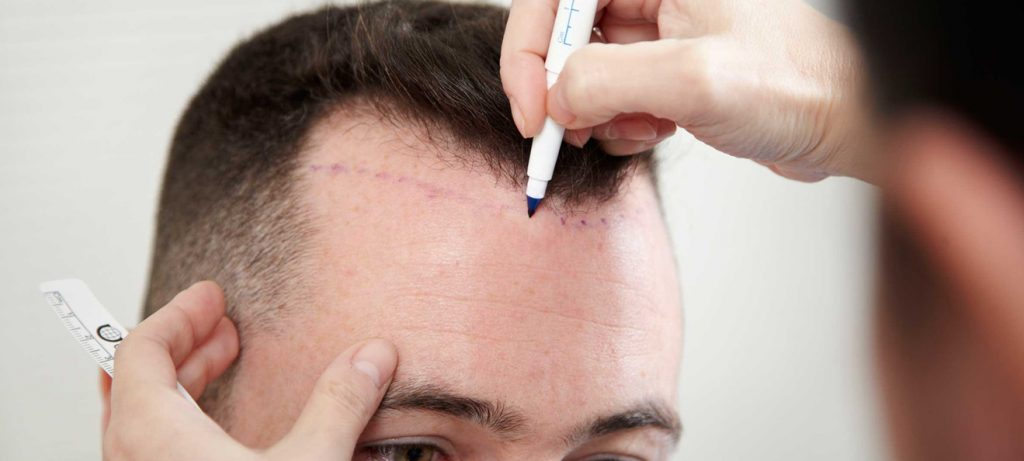 What Are The Reasons To Choose Hair Transplant Treatment?