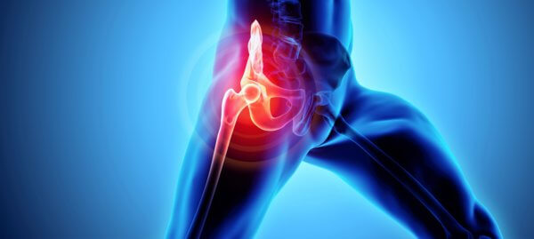 Cost of Hip Replacement Treatment in India